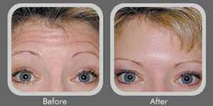 Before and after Botox procedure.