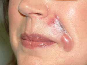 Botox DIY injectible damage.